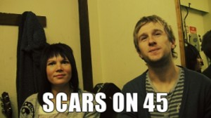 Scars On 45 backstage at The Brudenell Social Club
